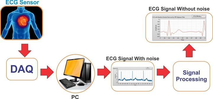 پردازش سیگنال ECG با لب ویو